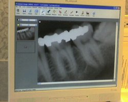 Sitting_in_the_dentist_chair_1